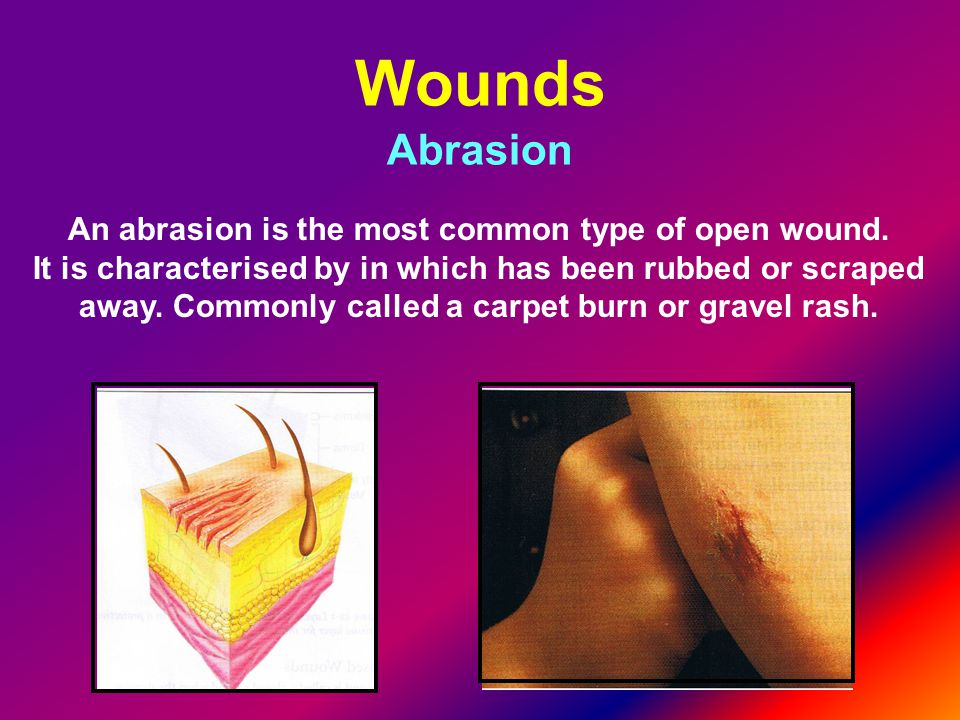 Wounds Abrasion An abrasion is the most common type of open wound.