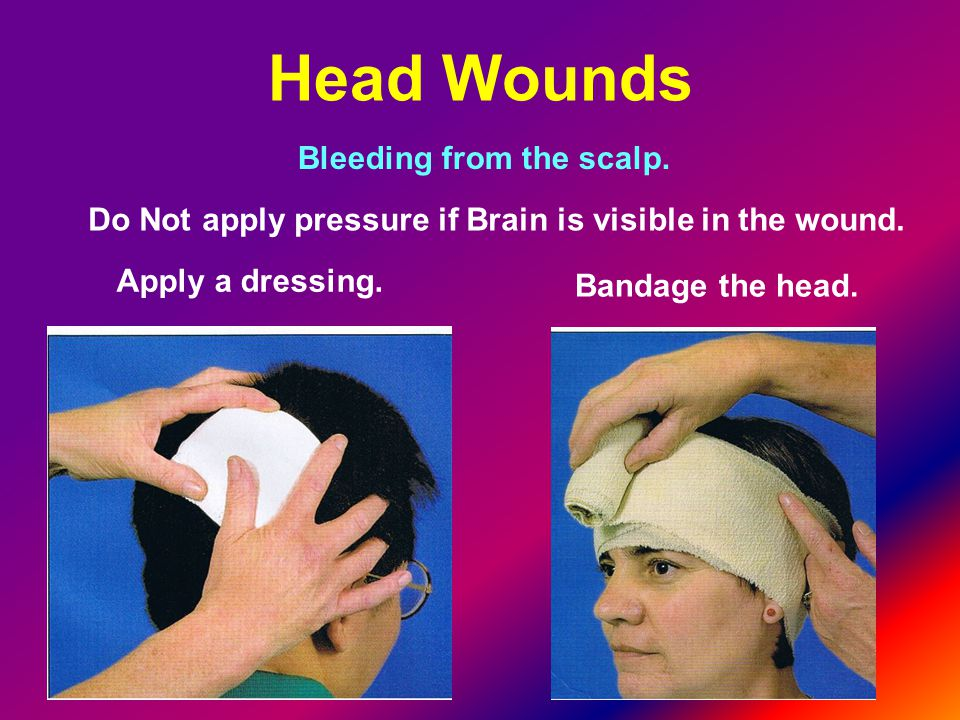 Head Wounds Bleeding from the scalp.Do Not apply pressure if Brain is visible in the wound.