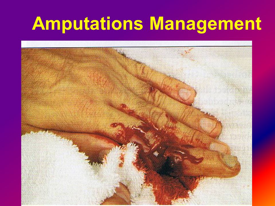 Amputations Management