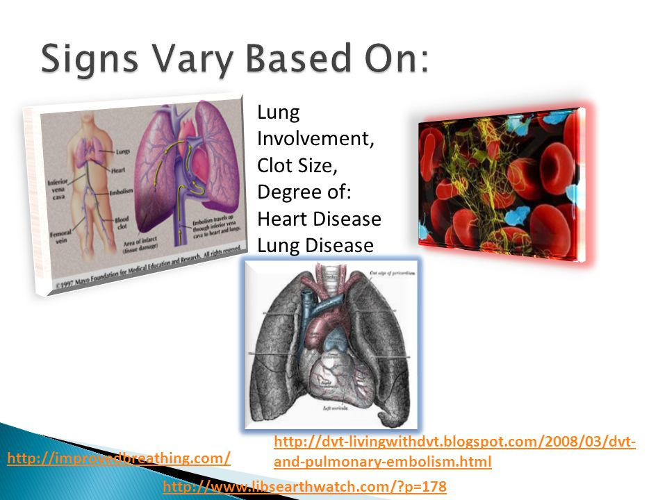 http://improvedbreathing.com/ http://dvt-livingwithdvt.blogspot.com/2008/03/dvt- and-pulmonary-embolism.html Lung Involvement, Clot Size, Degree of: Heart Disease Lung Disease http://www.libsearthwatch.com/?p=178