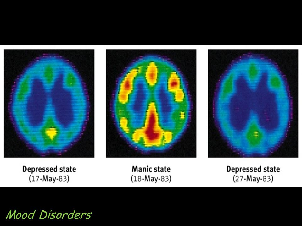 Bipolar Brain Mood Disorders