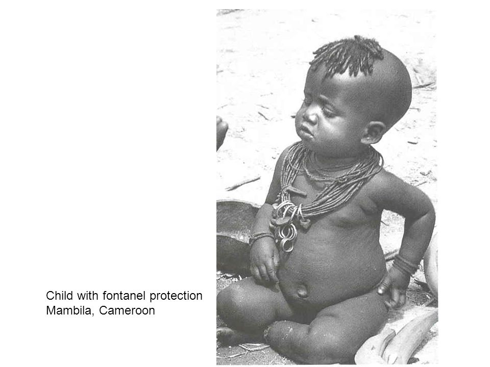 Child with fontanel protection Mambila, Cameroon