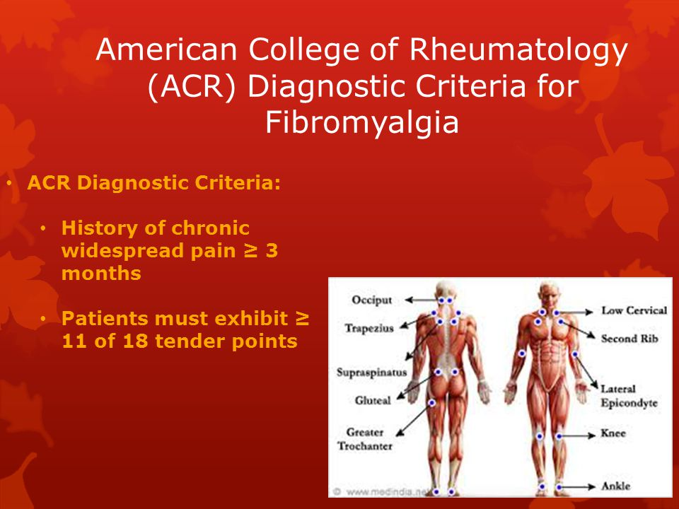 American College of Rheumatology (ACR) Diagnostic Criteria for Fibromyalgia ACR Diagnostic Criteria: History of chronic widespread pain ≥ 3 months Patients must exhibit ≥ 11 of 18 tender points