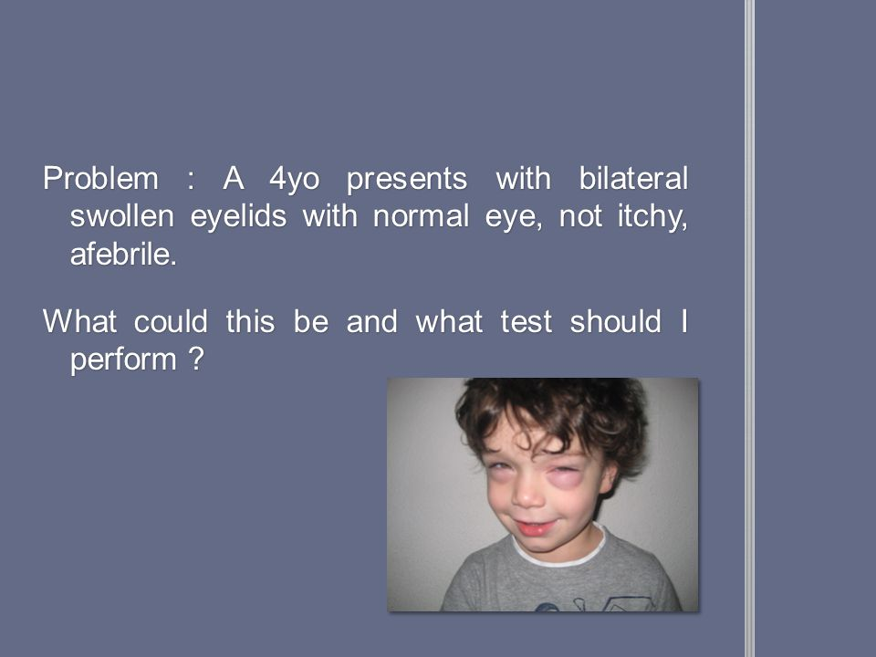 Problem : A 4yo presents with bilateral swollen eyelids with normal eye, not itchy, afebrile.