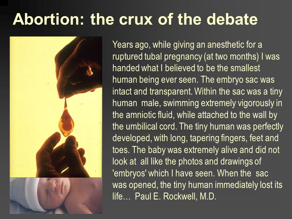 Abortion: the crux of the debate Years ago, while giving an anesthetic for a ruptured tubal pregnancy (at two months) I was handed what I believed to be the smallest human being ever seen.