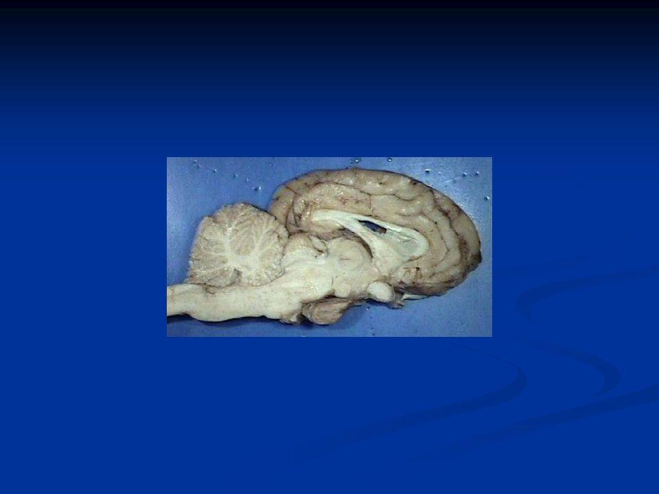EGO ID SUPEREGOSUPEREGO Conscious Preconscious Unconscious
