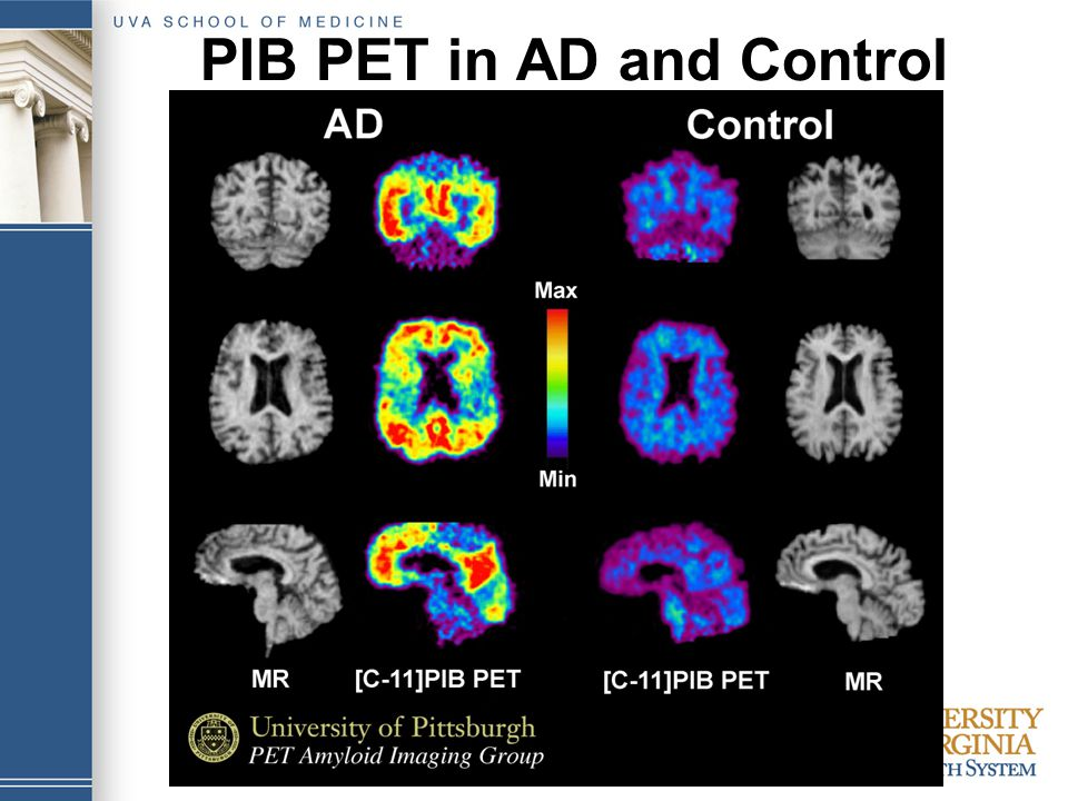 PIB PET in AD and Control
