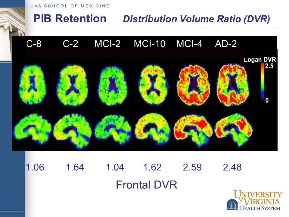 PIB Retention Distribution Volume Ratio (DVR) 1.06 1.64 1.04 1.62 2.59 2.48 Frontal DVR C-8 C-2 MCI-2 MCI-10 MCI-4 AD-2
