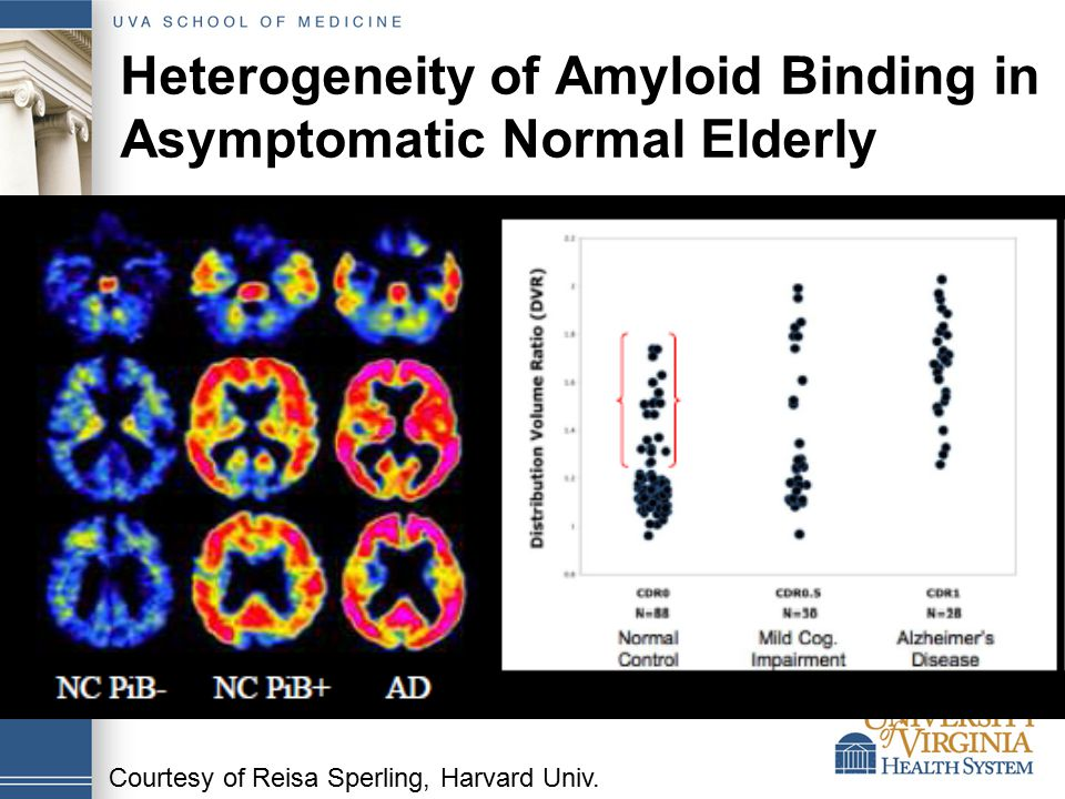 Heterogeneity of Amyloid Binding in Asymptomatic Normal Elderly Courtesy of Reisa Sperling, Harvard Univ.