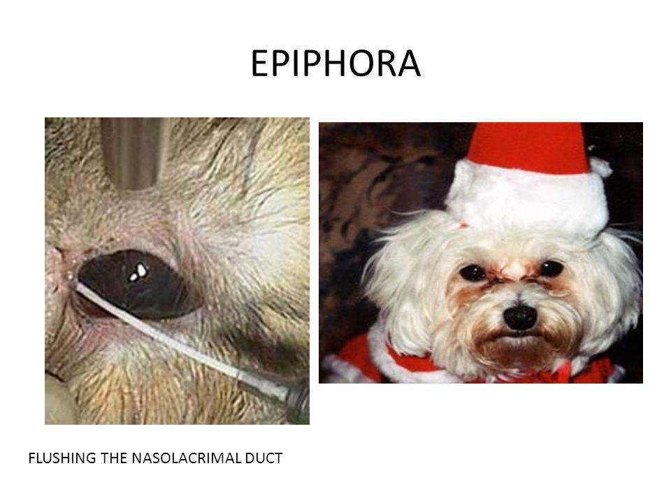 EPIPHORA FLUSHING THE NASOLACRIMAL DUCT