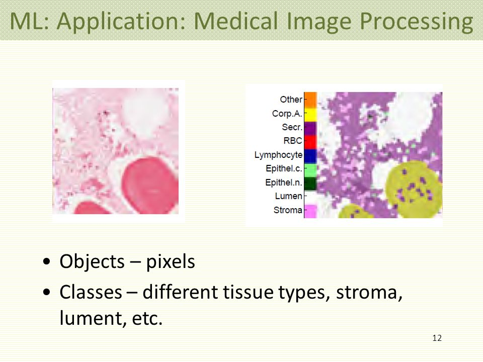 12 ML: Application: Medical Image Processing Objects – pixels Classes – different tissue types, stroma, lument, etc.