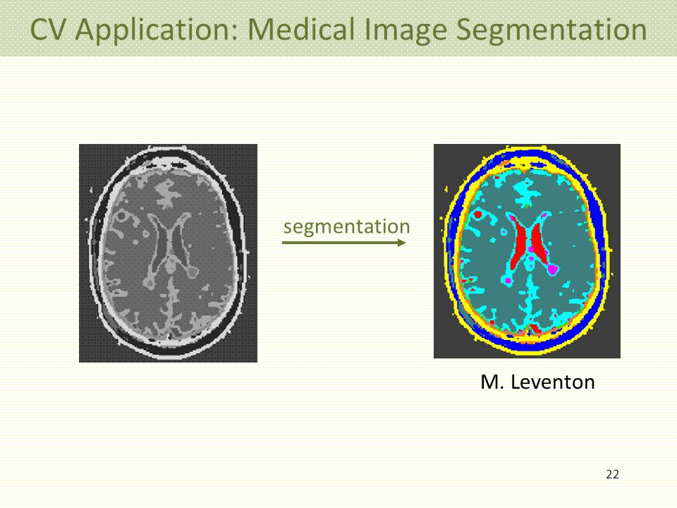 22 CV Application: Medical Image Segmentation M. Leventon segmentation
