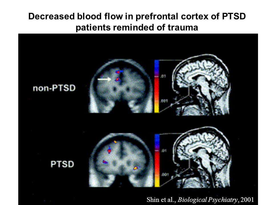Shin et al., Biological Psychiatry, 2001 Decreased blood flow in prefrontal cortex of PTSD patients reminded of trauma