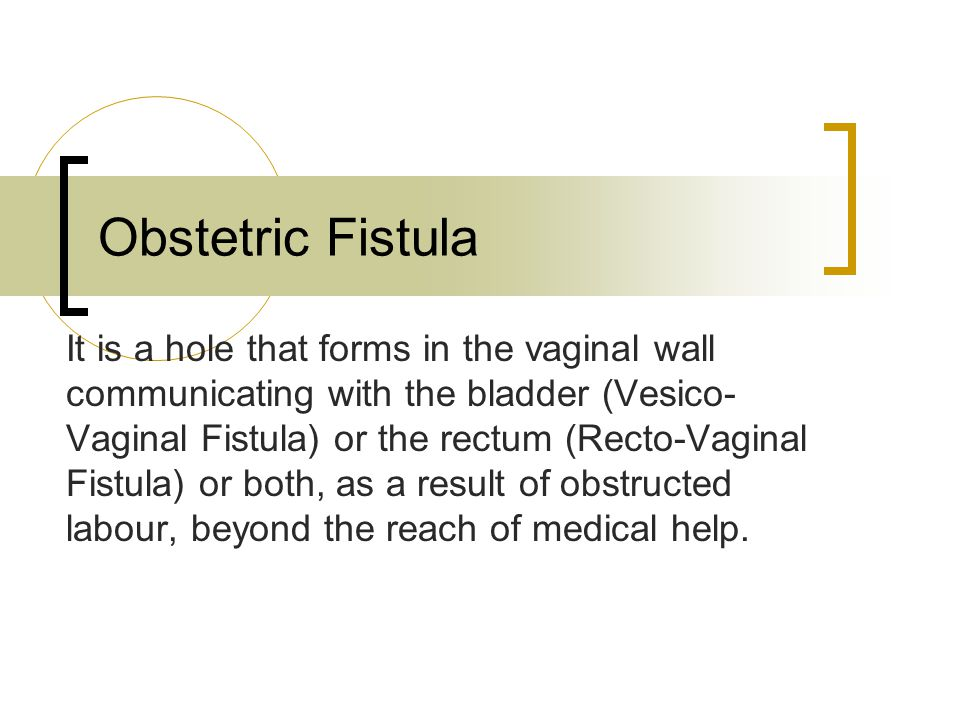 Obstetric Fistula It is a hole that forms in the vaginal wall communicating with the bladder (Vesico- Vaginal Fistula) or the rectum (Recto-Vaginal Fistula) or both, as a result of obstructed labour, beyond the reach of medical help.