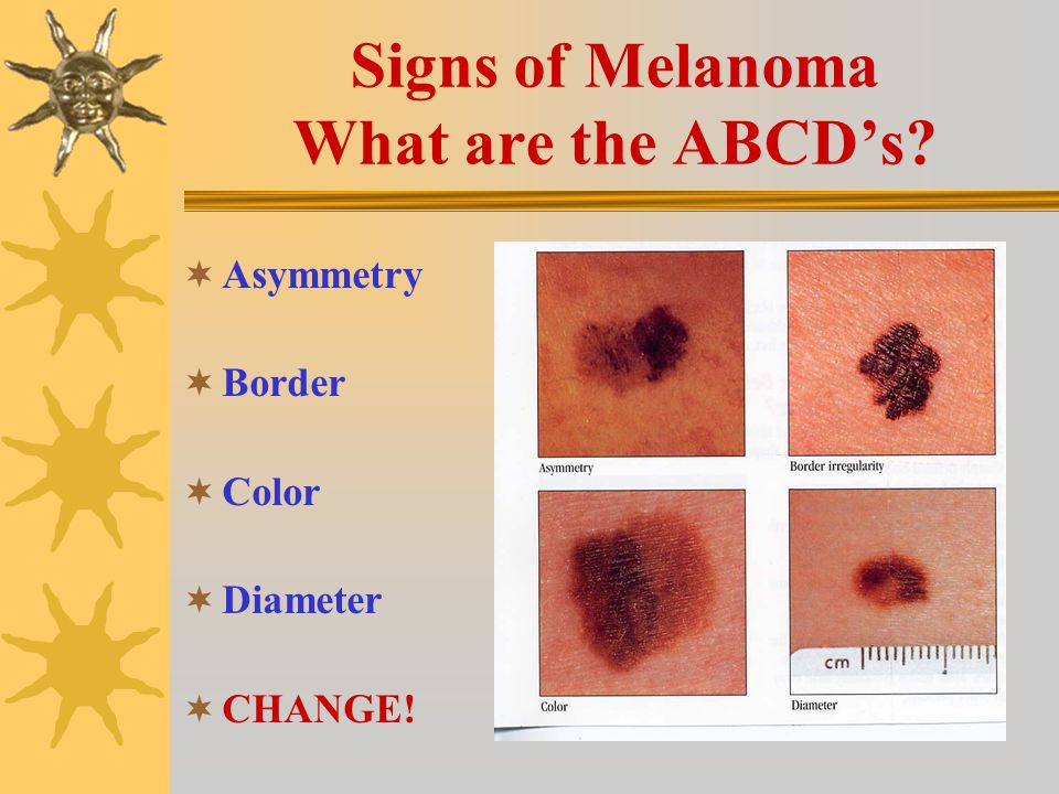 Do You Know the Three Main Types of Skin Cancer.