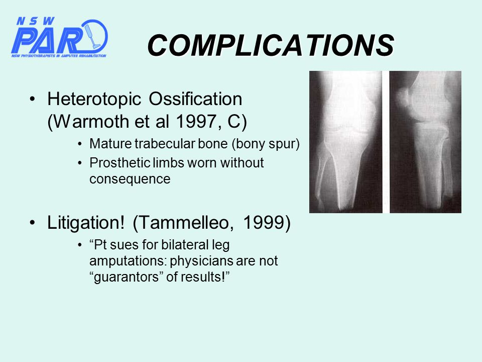 COMPLICATIONS Heterotopic Ossification (Warmoth et al 1997, C) Mature trabecular bone (bony spur) Prosthetic limbs worn without consequence Litigation.