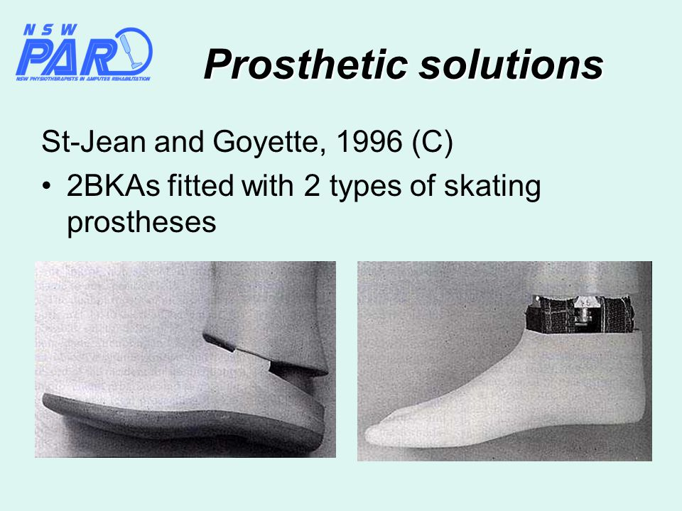 Prosthetic solutions St-Jean and Goyette, 1996 (C) 2BKAs fitted with 2 types of skating prostheses