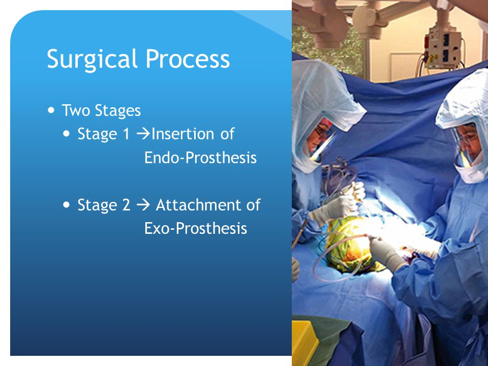 Surgical Process Two Stages Stage 1  Insertion of Endo-Prosthesis Stage 2  Attachment of Exo-Prosthesis