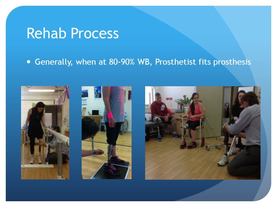 Rehab Process Generally, when at 80-90% WB, Prosthetist fits prosthesis