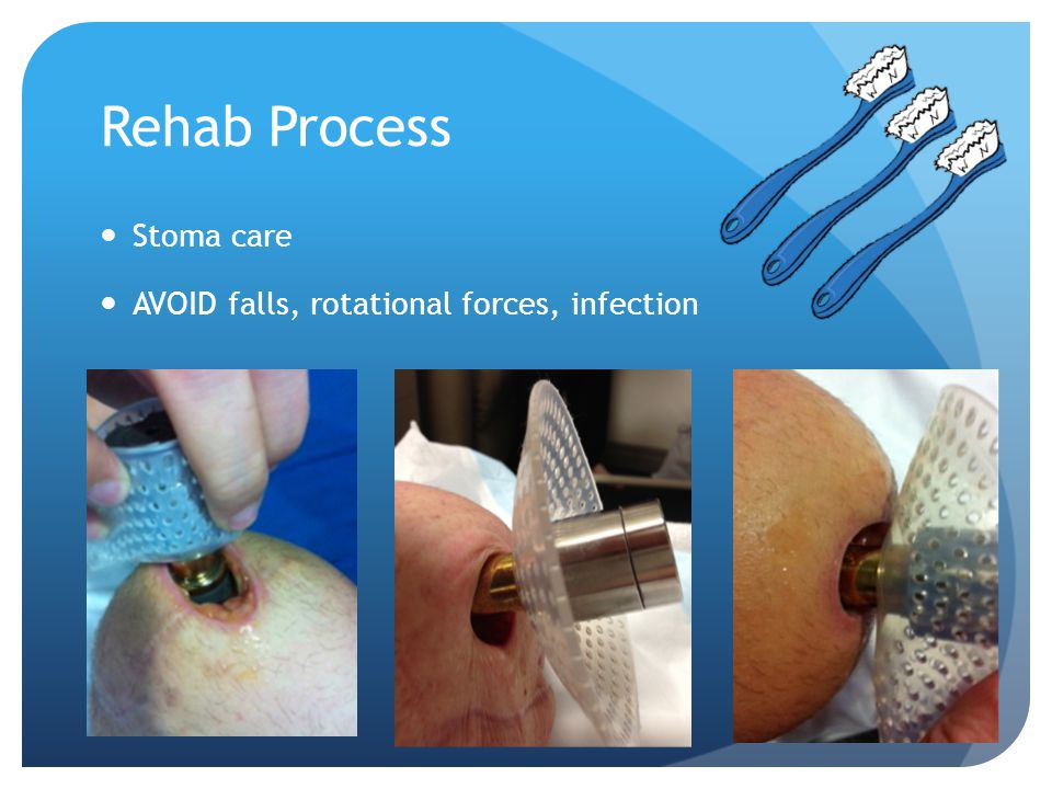 Rehab Process Stoma care AVOID falls, rotational forces, infection