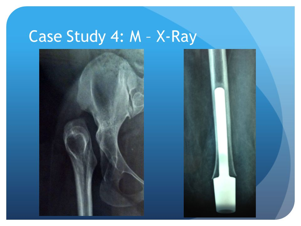 Case Study 4: M – X-Ray