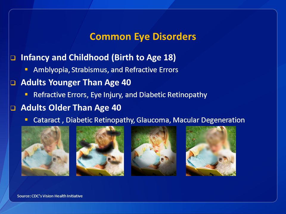 Common Eye Disorders  Infancy and Childhood (Birth to Age 18)  Amblyopia, Strabismus, and Refractive Errors  Adults Younger Than Age 40  Refractive Errors, Eye Injury, and Diabetic Retinopathy  Adults Older Than Age 40  Cataract, Diabetic Retinopathy, Glaucoma, Macular Degeneration Source: CDC's Vision Health Initiative