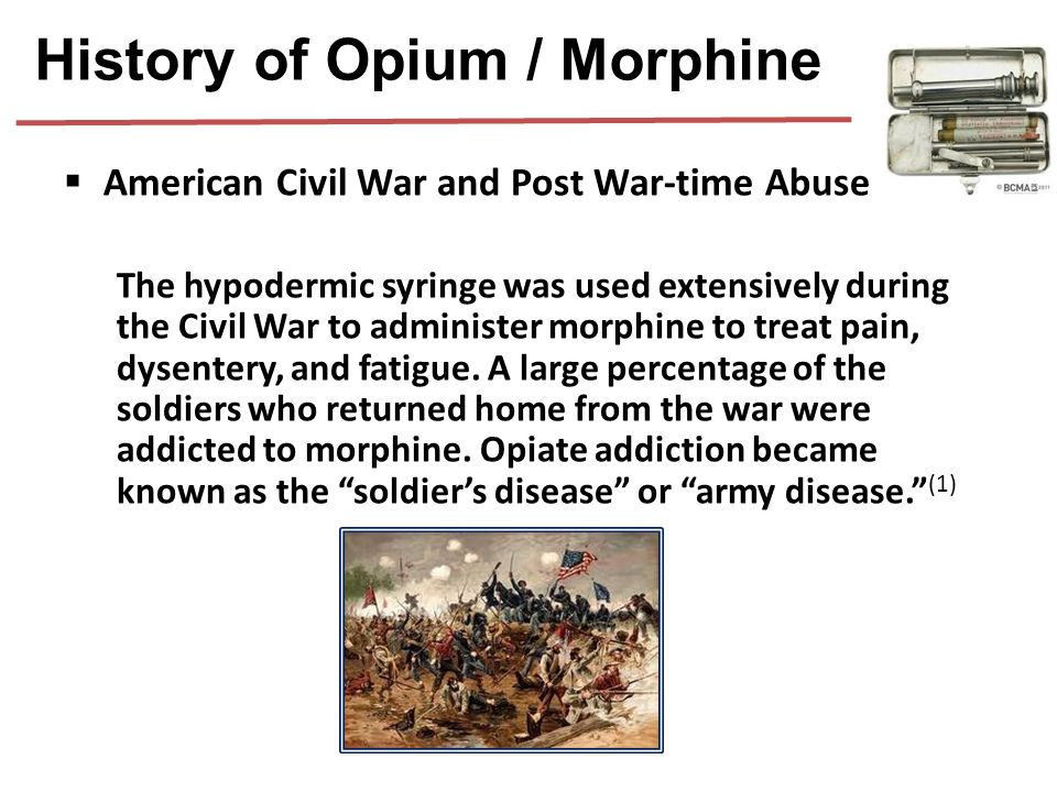  American Civil War and Post War-time Abuse The hypodermic syringe was used extensively during the Civil War to administer morphine to treat pain, dy