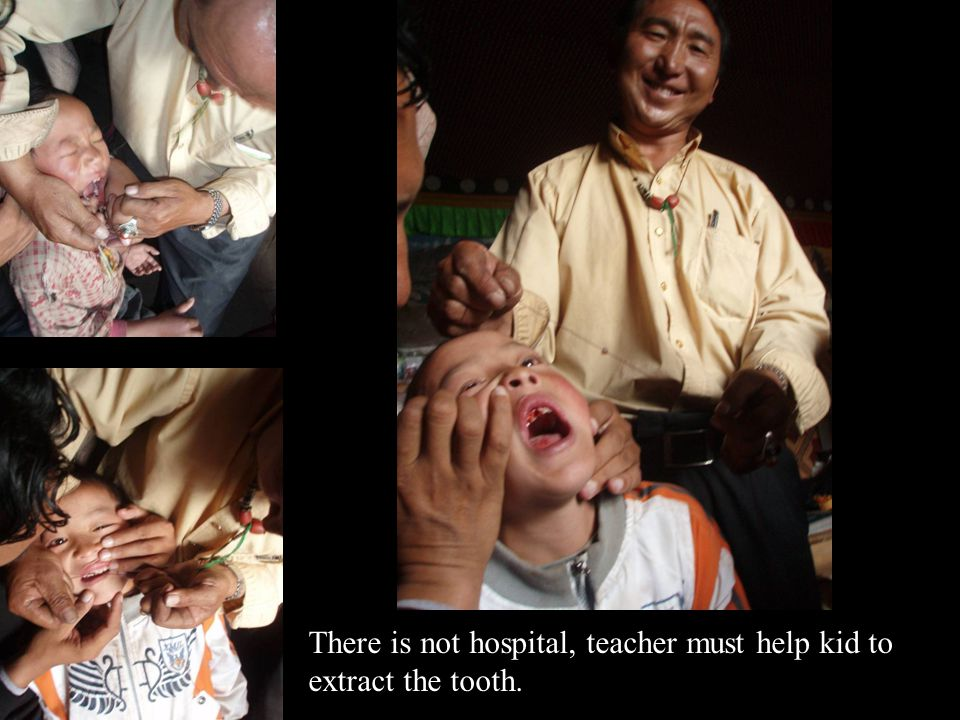 There is not hospital, teacher must help kid to extract the tooth.