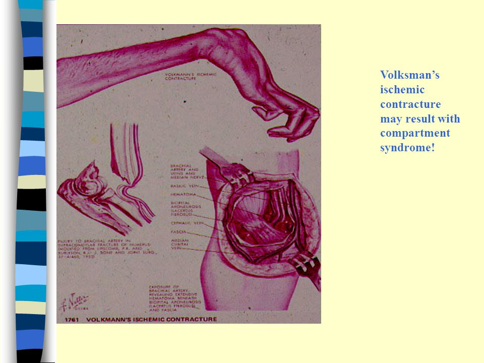 Volksman's ischemic contracture may result with compartment syndrome!