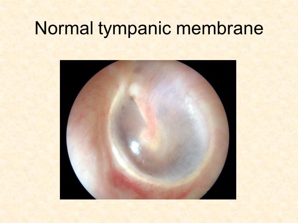Tympanic sclerosis