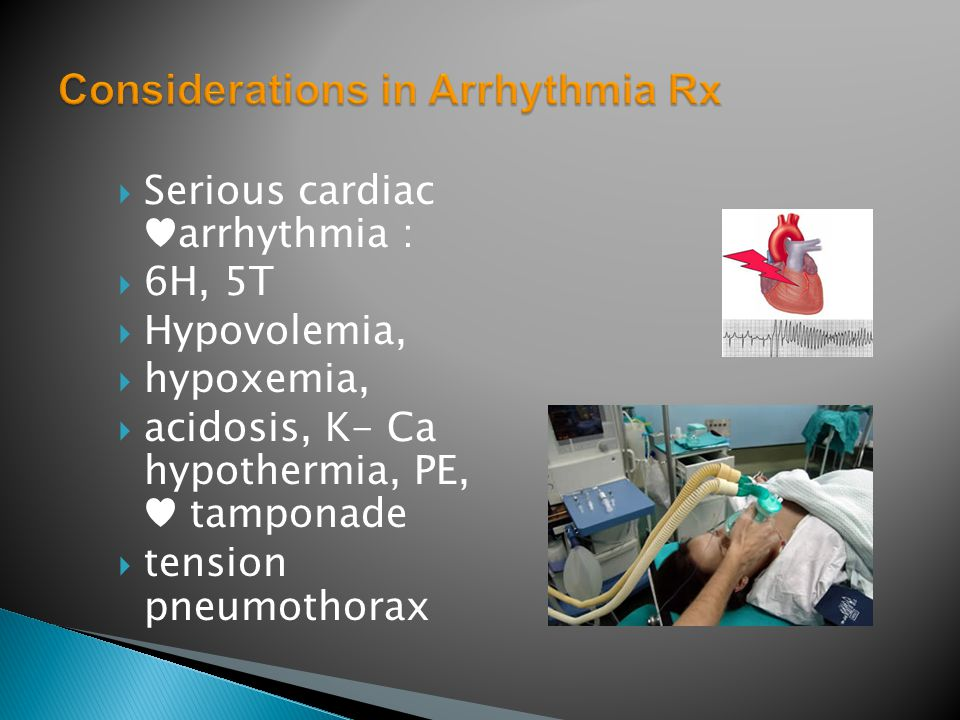  Serious cardiac ♥arrhythmia :  6H, 5T  Hypovolemia,  hypoxemia,  acidosis, K- Ca hypothermia, PE, ♥ tamponade  tension pneumothorax