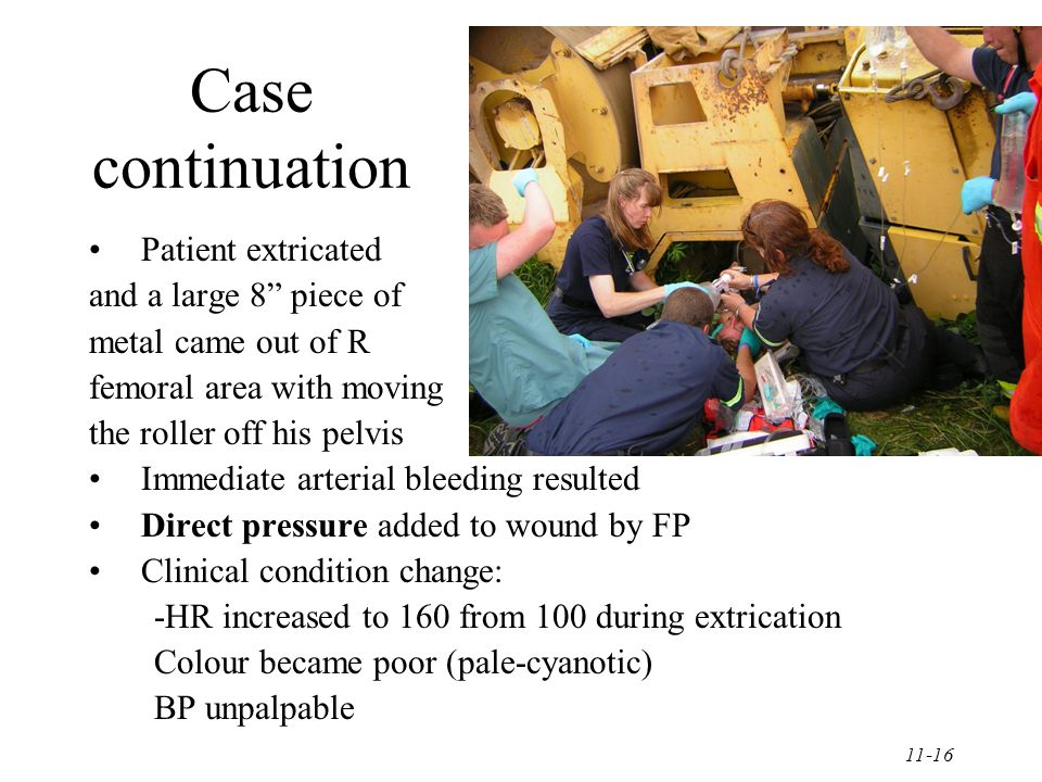 11-16 Case continuation Patient extricated and a large 8 piece of metal came out of R femoral area with moving the roller off his pelvis Immediate arterial bleeding resulted Direct pressure added to wound by FP Clinical condition change: -HR increased to 160 from 100 during extrication Colour became poor (pale-cyanotic) BP unpalpable