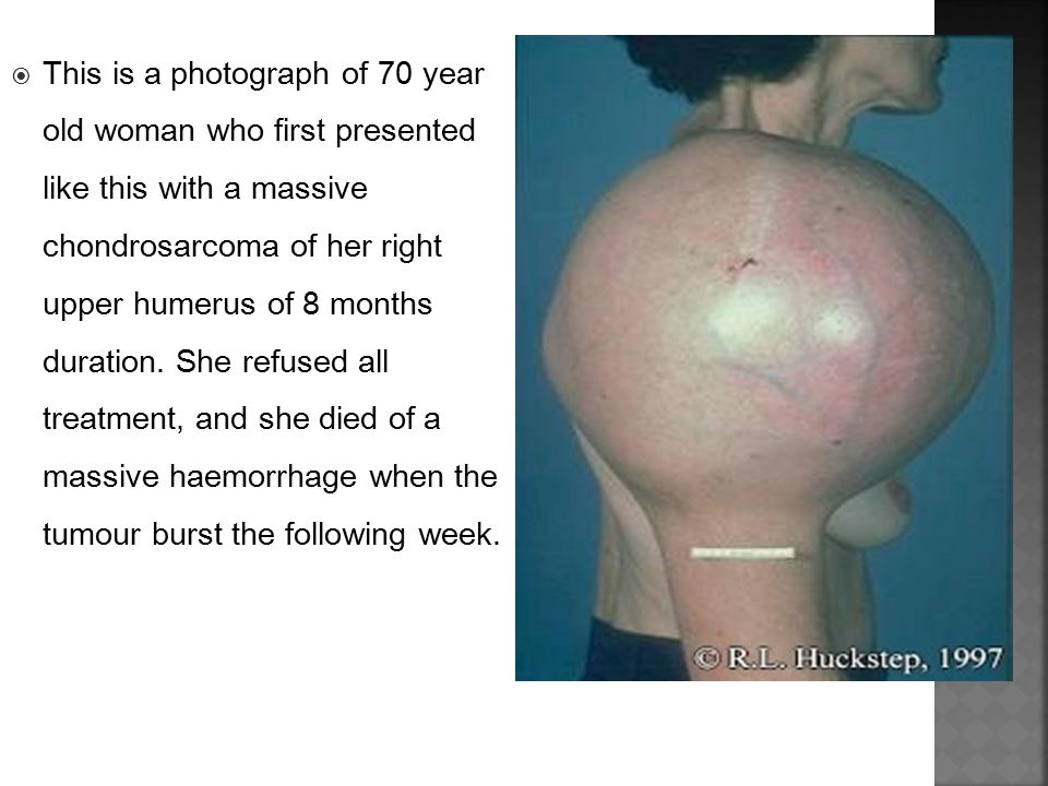  This is a photograph of 70 year old woman who first presented like this with a massive chondrosarcoma of her right upper humerus of 8 months duratio