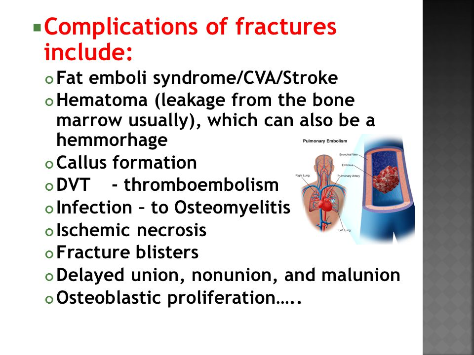  Complications of fractures include: Fat emboli syndrome/CVA/Stroke Hematoma (leakage from the bone marrow usually), which can also be a hemmorhage C