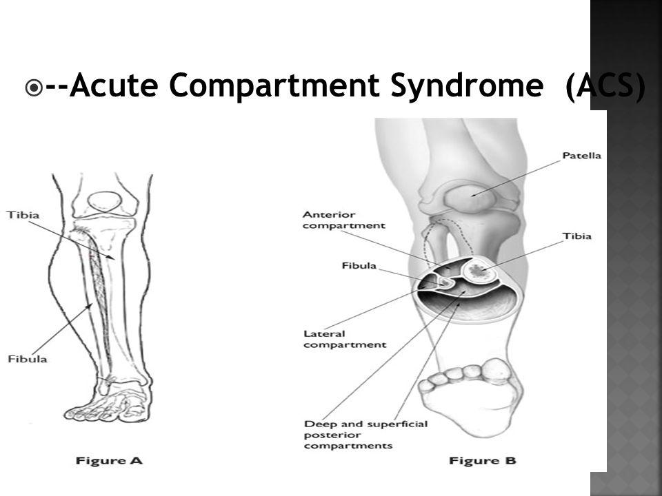  --Acute Compartment Syndrome (ACS)