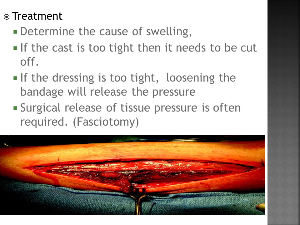  Treatment  Determine the cause of swelling,  If the cast is too tight then it needs to be cut off.