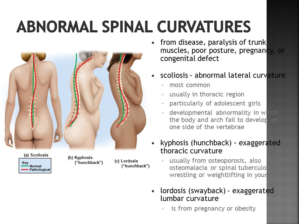 from disease, paralysis of trunk muscles, poor posture, pregnancy, or congenital defect scoliosis – abnormal lateral curvature ◦ most common ◦ usually in thoracic region ◦ particularly of adolescent girls ◦ developmental abnormality in which the body and arch fail to develop on one side of the vertebrae kyphosis (hunchback) – exaggerated thoracic curvature ◦ usually from osteoporosis, also osteomalacia or spinal tuberculosis, or wrestling or weightlifting in young boys lordosis (swayback) – exaggerated lumbar curvature ◦ is from pregnancy or obesity Key Normal Pathological (b) Kyphosis ( hunchback ) (c) Lordosis ( hunchback ) (a) Scoliosis
