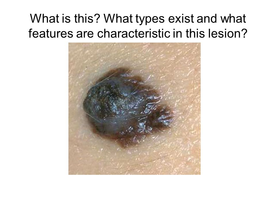 What is this? What types exist and what features are characteristic in this lesion?