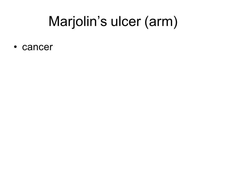 Marjolin's ulcer (arm) cancer