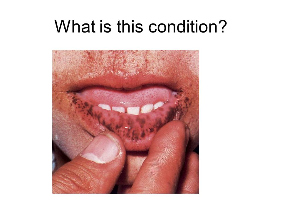 What is this condition?