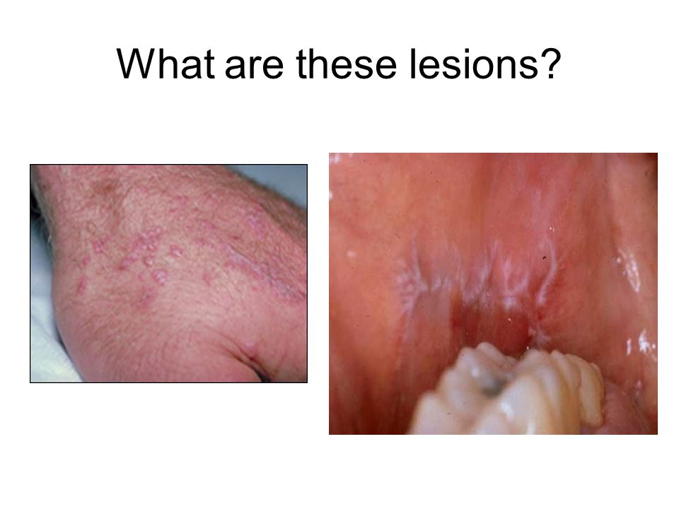 What are these lesions?