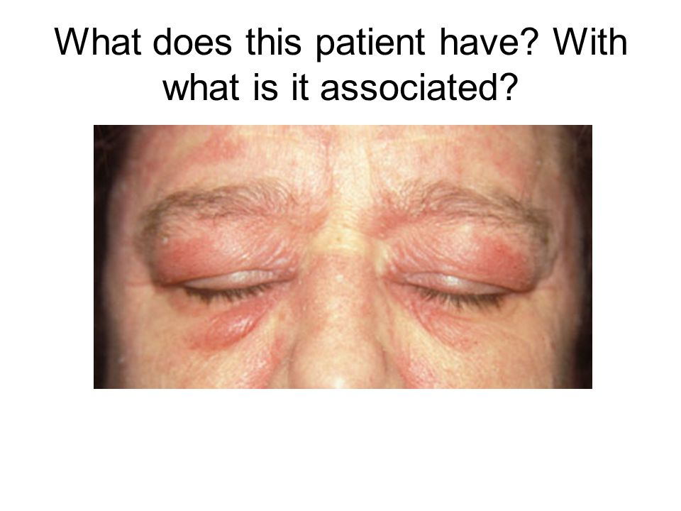 What does this patient have? With what is it associated?