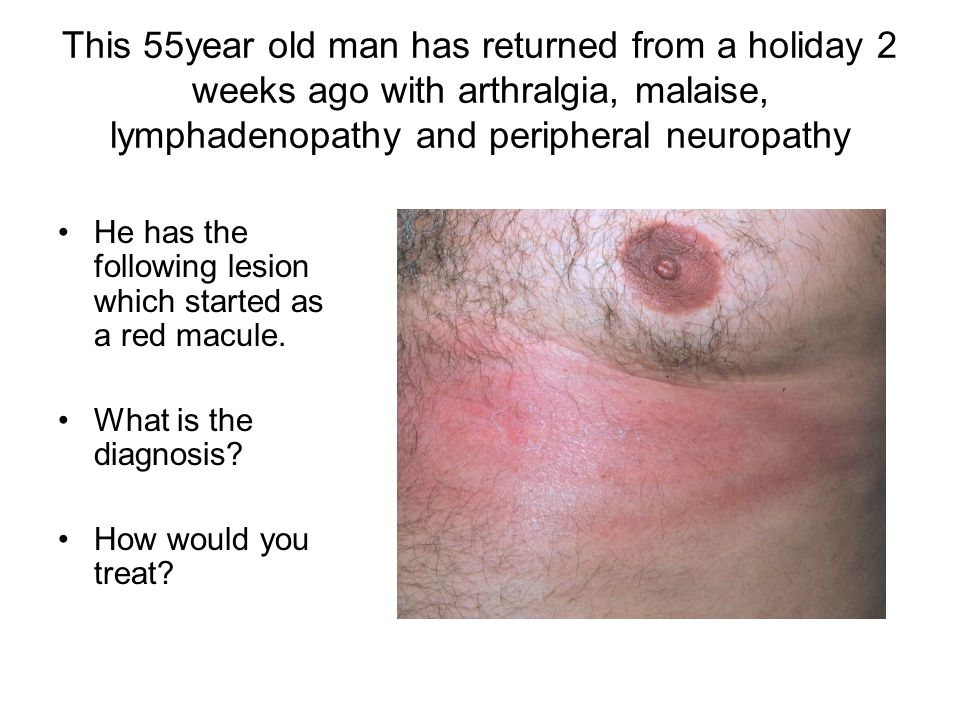This 55year old man has returned from a holiday 2 weeks ago with arthralgia, malaise, lymphadenopathy and peripheral neuropathy He has the following lesion which started as a red macule.