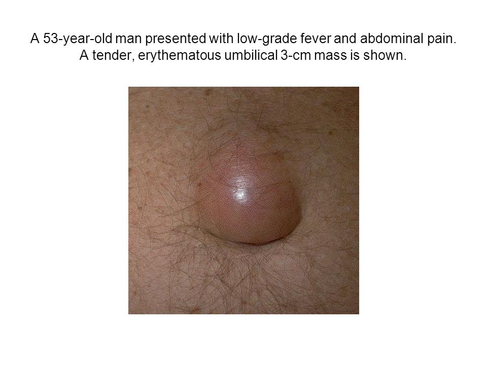A 53-year-old man presented with low-grade fever and abdominal pain. A tender, erythematous umbilical 3-cm mass is shown.