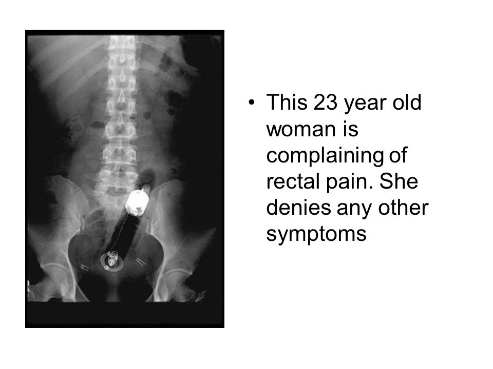 This 23 year old woman is complaining of rectal pain. She denies any other symptoms