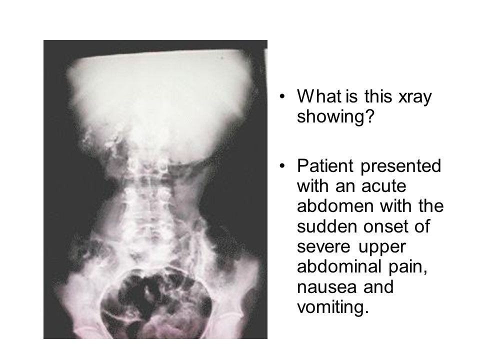 What is this xray showing? Patient presented with an acute abdomen with the sudden onset of severe upper abdominal pain, nausea and vomiting.