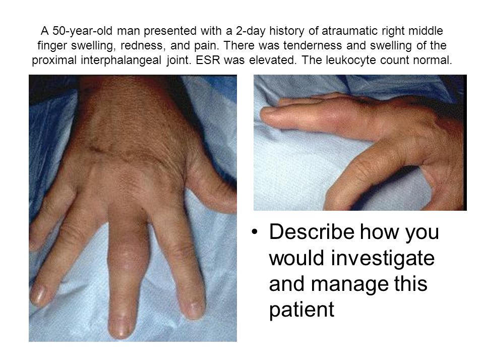A 50-year-old man presented with a 2-day history of atraumatic right middle finger swelling, redness, and pain.