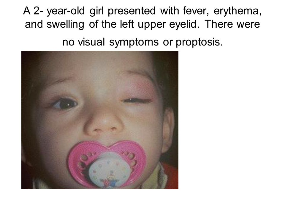 A 2- year-old girl presented with fever, erythema, and swelling of the left upper eyelid. There were no visual symptoms or proptosis.