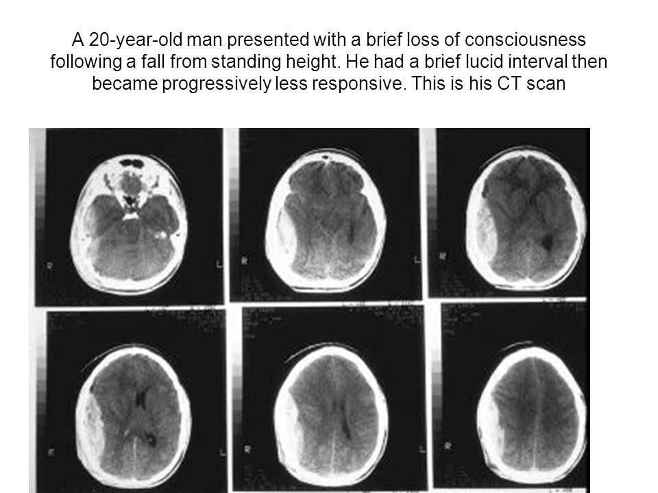 A 20-year-old man presented with a brief loss of consciousness following a fall from standing height. He had a brief lucid interval then became progre