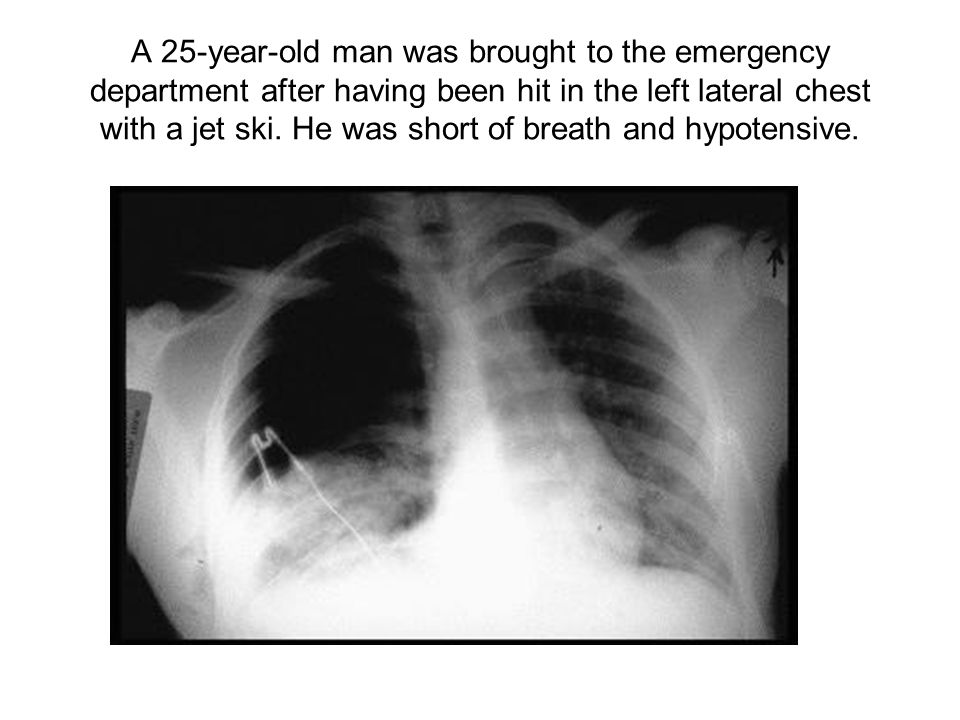 A 25-year-old man was brought to the emergency department after having been hit in the left lateral chest with a jet ski.